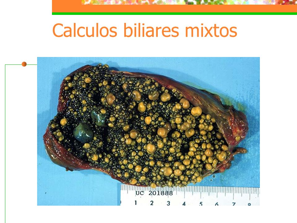 Calculos biliares mixtos