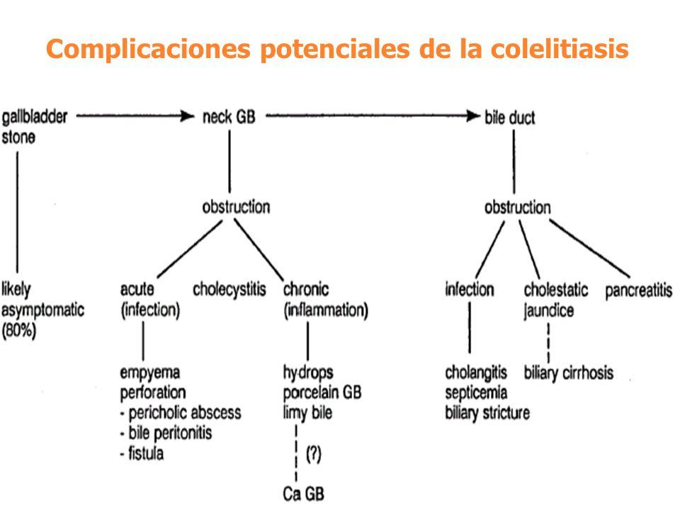 Complicaciones potenciales de la colelitiasis