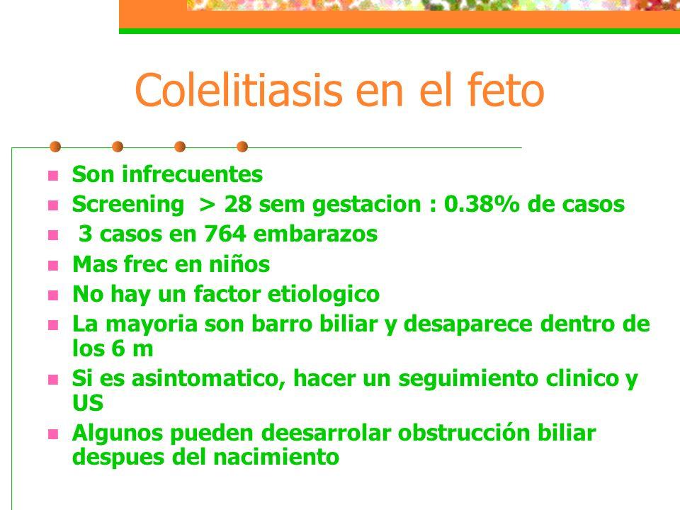 Colelitiasis en el feto