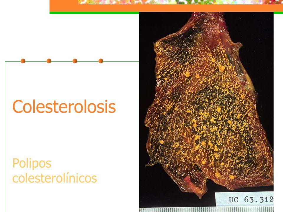 Colesterolosis Polipos colesterolínicos