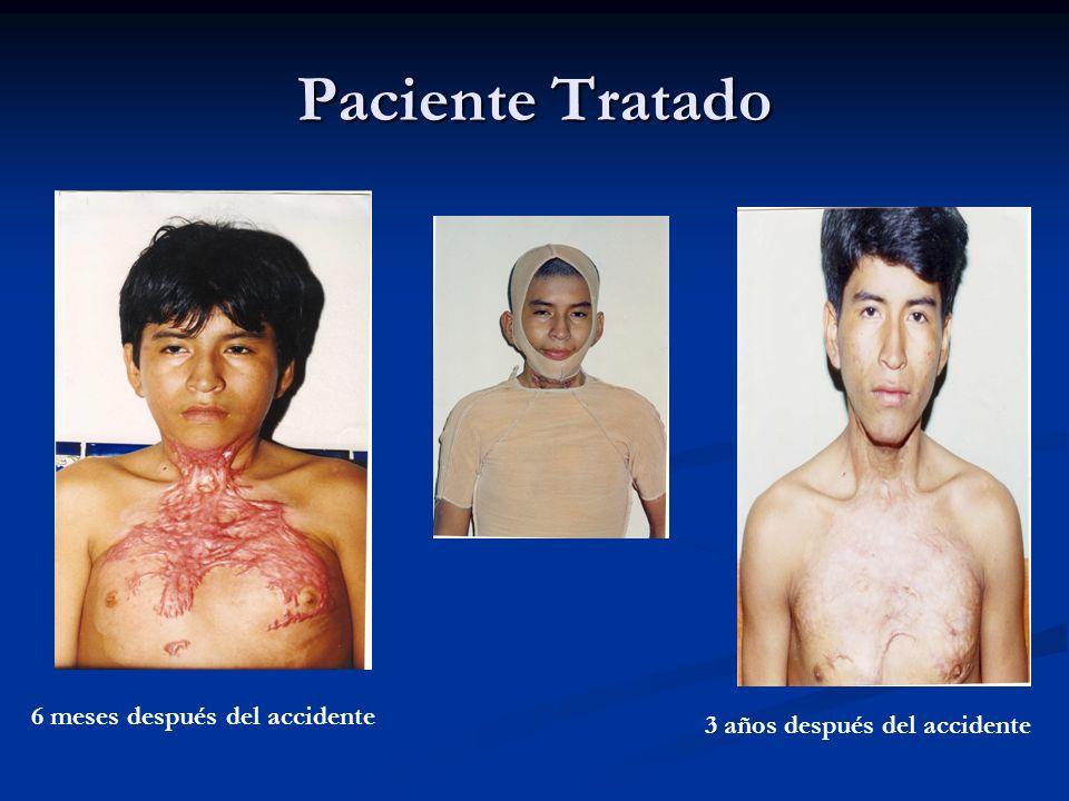 Paciente Tratado 6 meses después del accidente