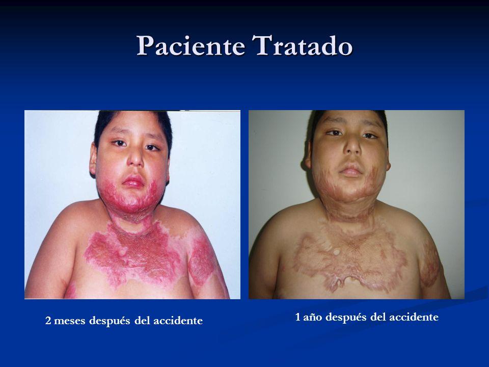 Paciente Tratado 1 año después del accidente