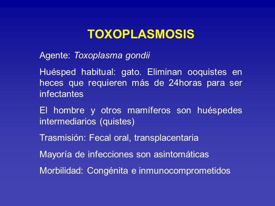 TOXOPLASMOSIS Agente: Toxoplasma gondii