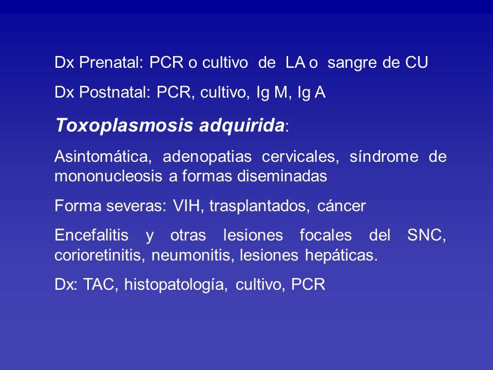Toxoplasmosis adquirida:
