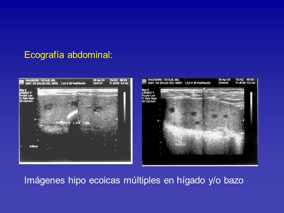 Ecografía abdominal: Imágenes hipo ecoicas múltiples en hígado y/o bazo