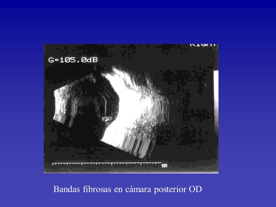 Bandas fibrosas en cámara posterior OD