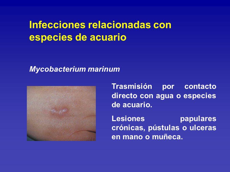 Infecciones relacionadas con especies de acuario
