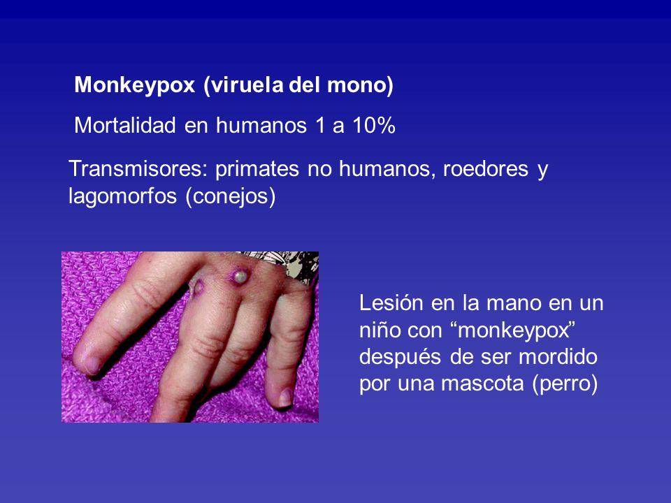 Monkeypox (viruela del mono)