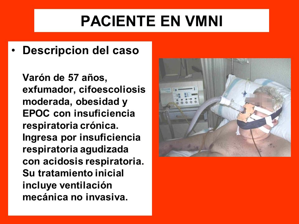 PACIENTE EN VMNI Descripcion del caso
