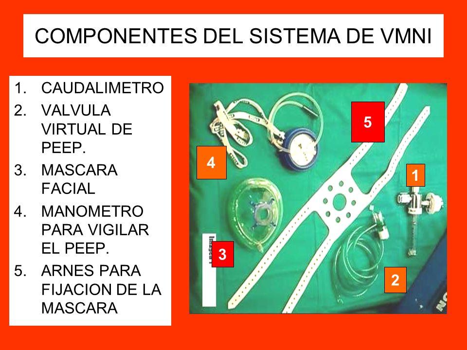COMPONENTES DEL SISTEMA DE VMNI