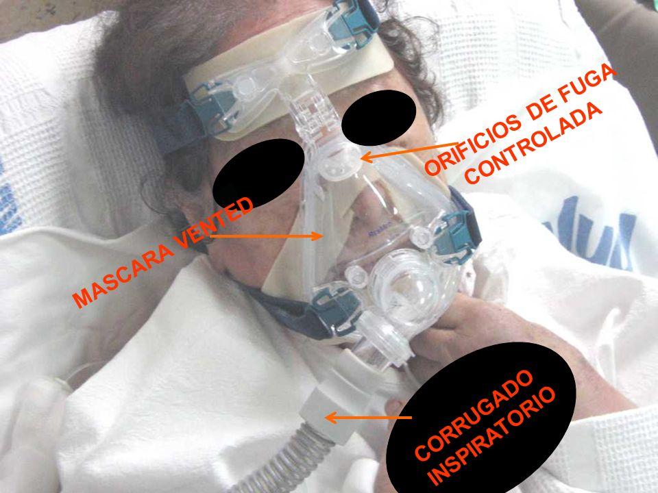 ORIFICIOS DE FUGA CONTROLADA MASCARA VENTED CORRUGADO INSPIRATORIO