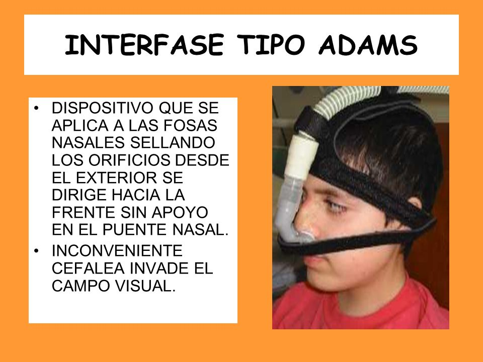 INTERFASE TIPO ADAMS