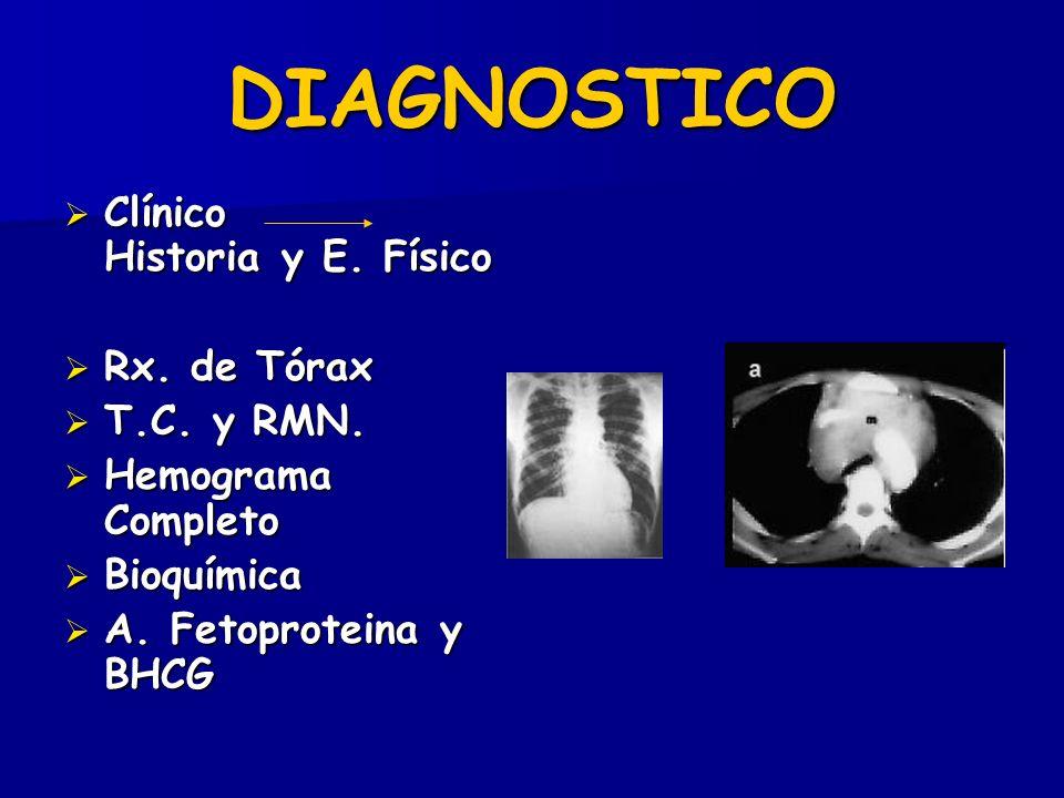 DIAGNOSTICO Clínico Historia y E. Físico Rx. de Tórax T.C. y RMN.