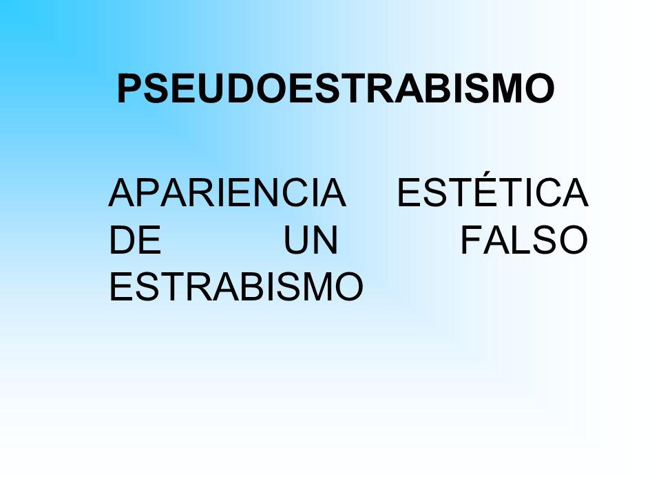 APARIENCIA ESTÉTICA DE UN FALSO ESTRABISMO
