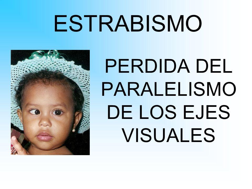 PERDIDA DEL PARALELISMO DE LOS EJES VISUALES