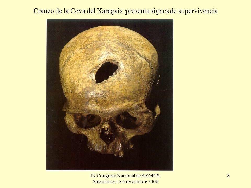 Craneo de la Cova del Xaragais: presenta signos de supervivencia
