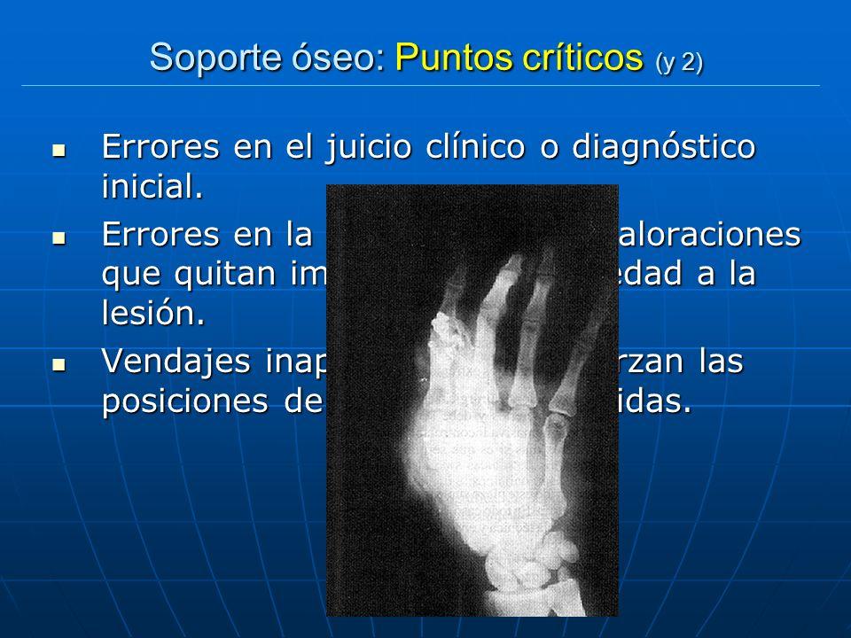Soporte óseo: Puntos críticos (y 2)