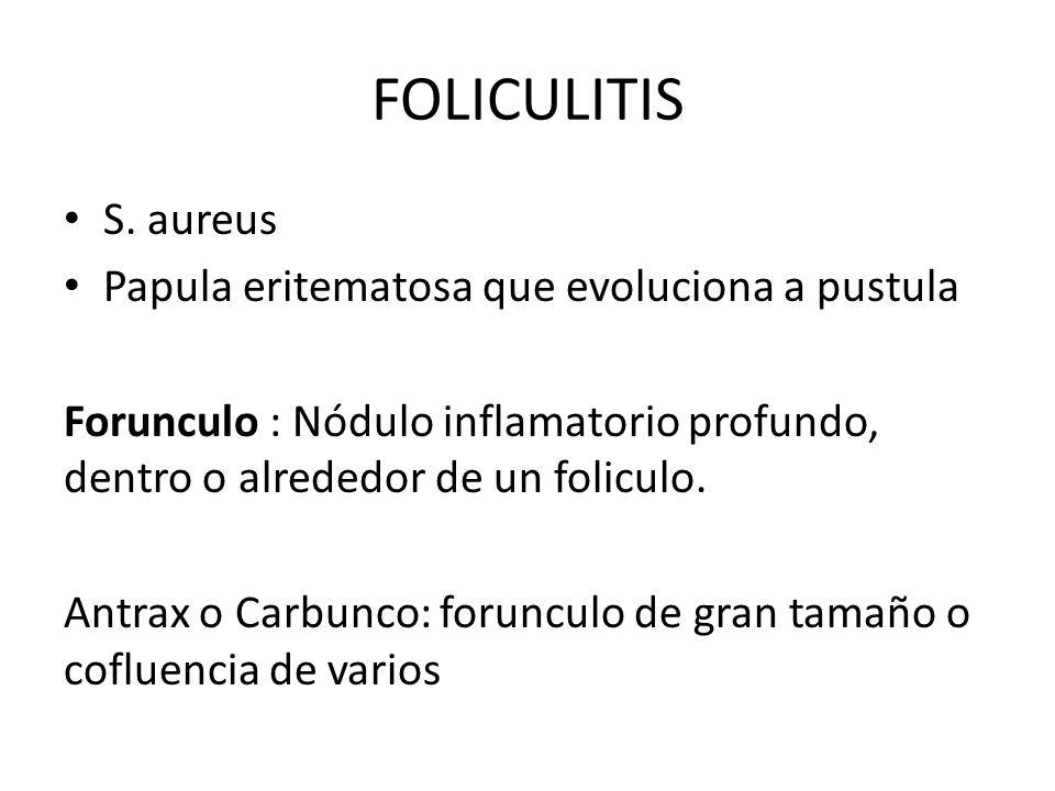 FOLICULITIS S. aureus Papula eritematosa que evoluciona a pustula