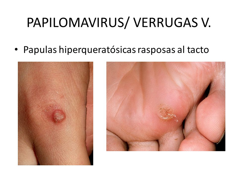 PAPILOMAVIRUS/ VERRUGAS V.