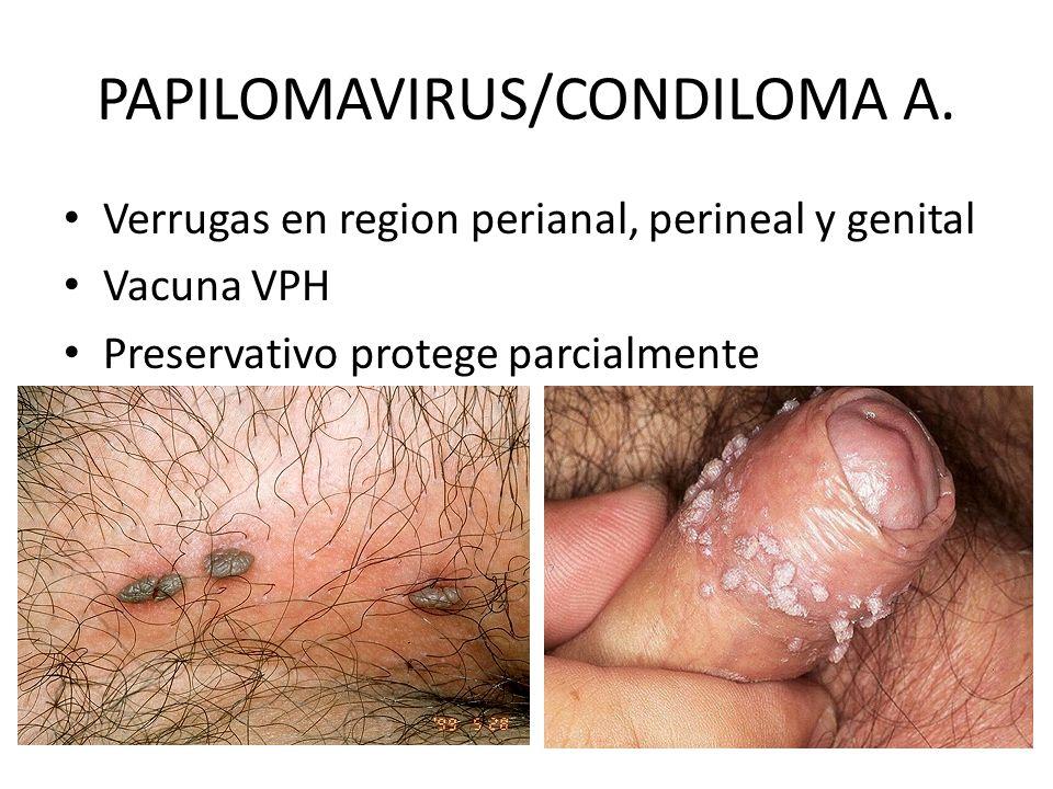 PAPILOMAVIRUS/CONDILOMA A.