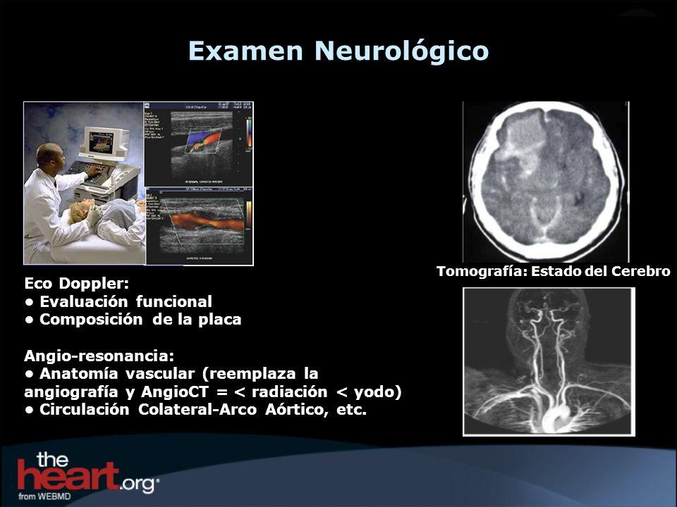 Examen Neurológico Eco Doppler: • Evaluación funcional