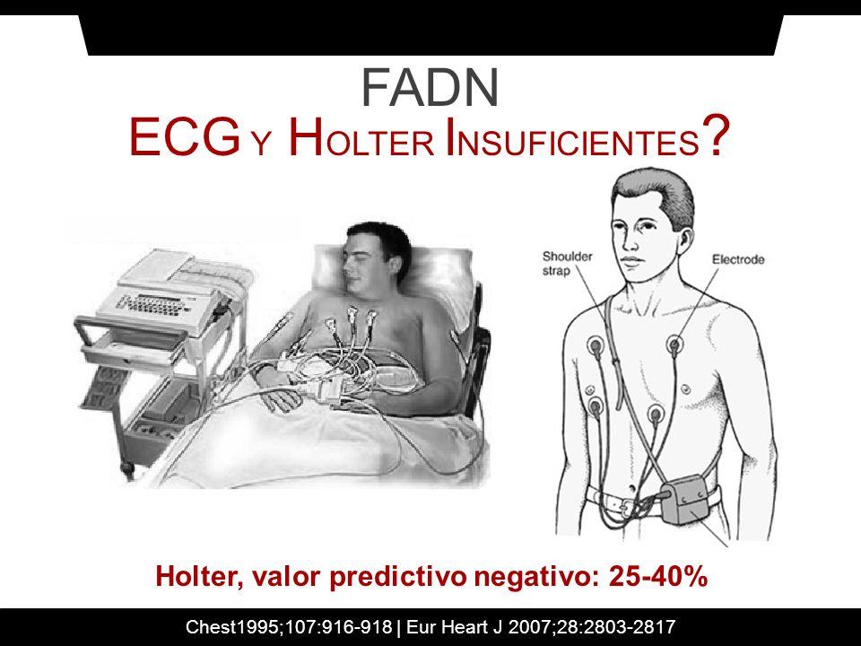 Holter, valor predictivo negativo: 25-40%