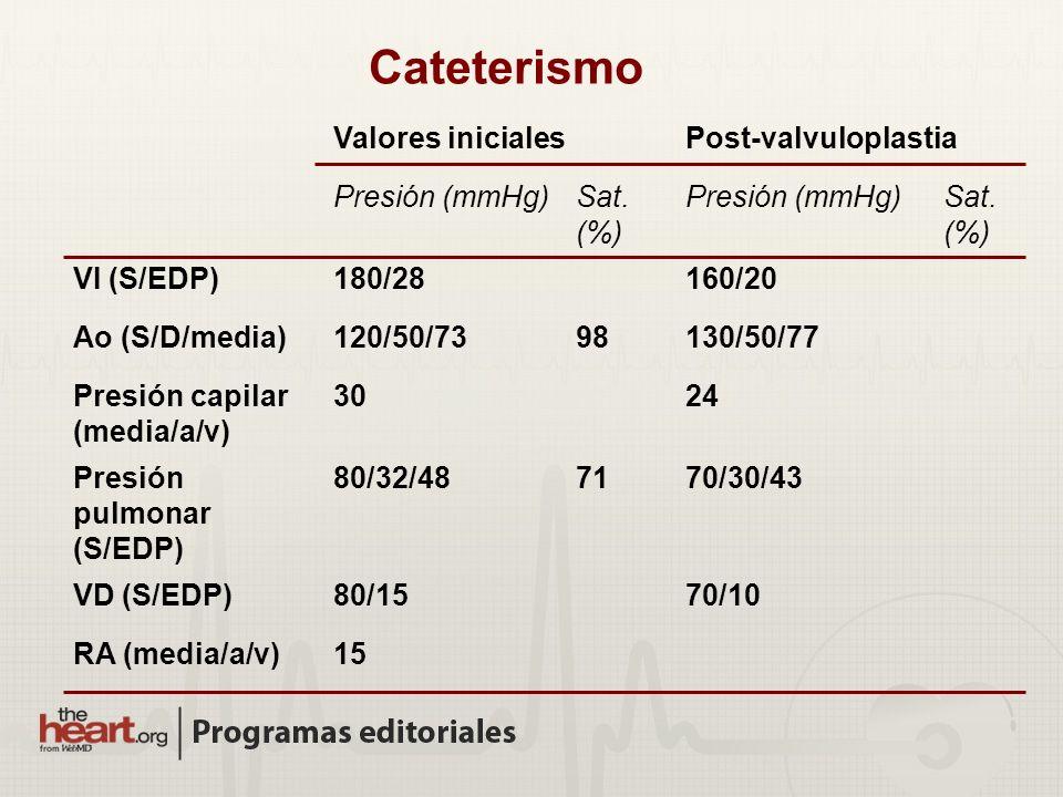 Cateterismo Valores iniciales Post-valvuloplastia Presión (mmHg)