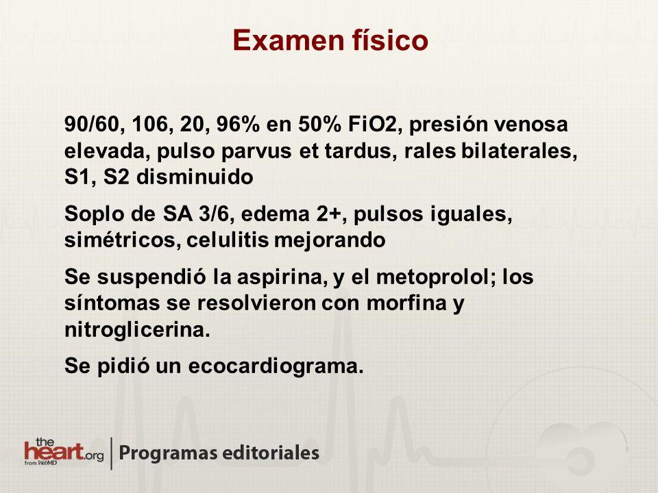 Examen físico 90/60, 106, 20, 96% en 50% FiO2, presión venosa elevada, pulso parvus et tardus, rales bilaterales, S1, S2 disminuido.