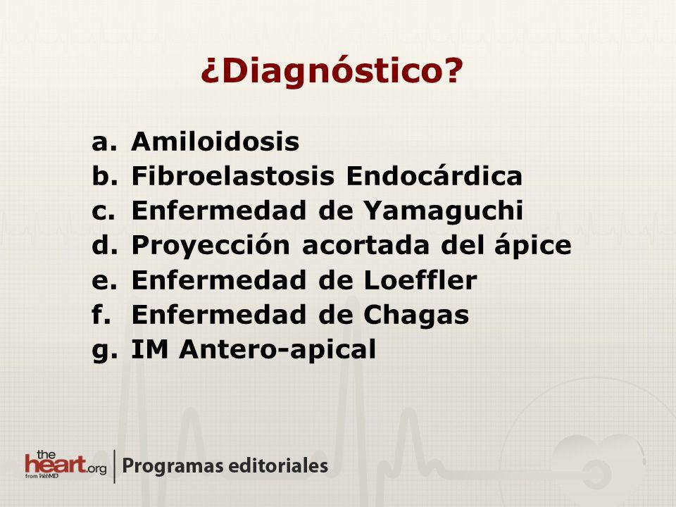 ¿Diagnóstico Amiloidosis Fibroelastosis Endocárdica