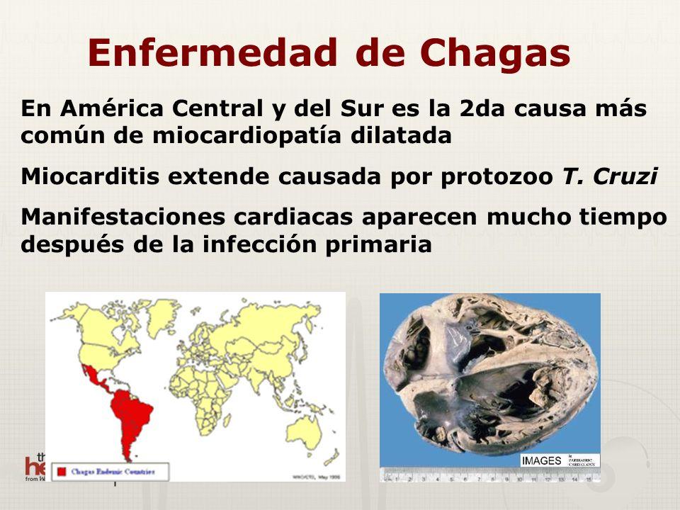 Enfermedad de Chagas En América Central y del Sur es la 2da causa más común de miocardiopatía dilatada.