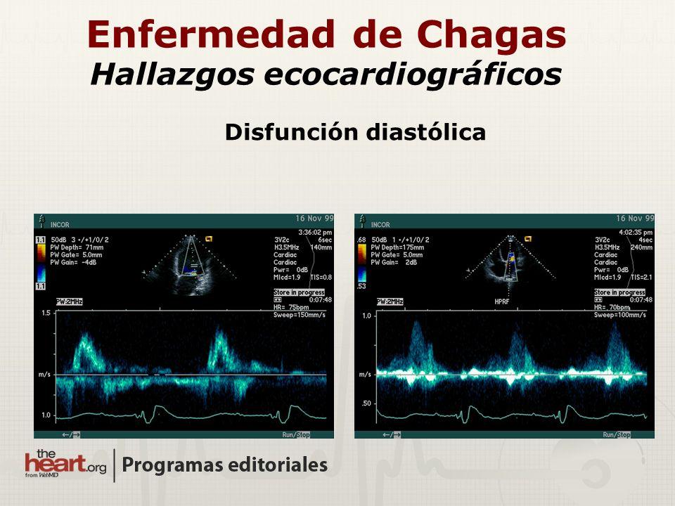 Enfermedad de Chagas Hallazgos ecocardiográficos Disfunción diastólica