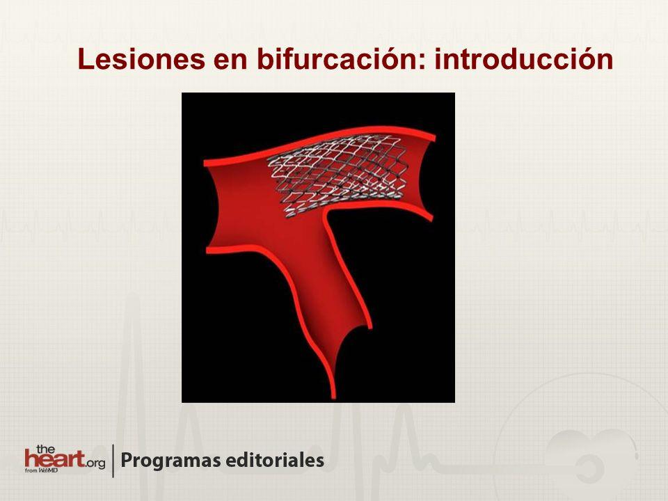Lesiones en bifurcación: introducción