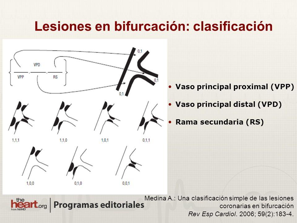 Lesiones en bifurcación: clasificación