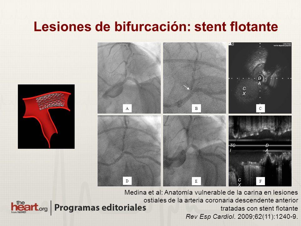 Lesiones de bifurcación: stent flotante