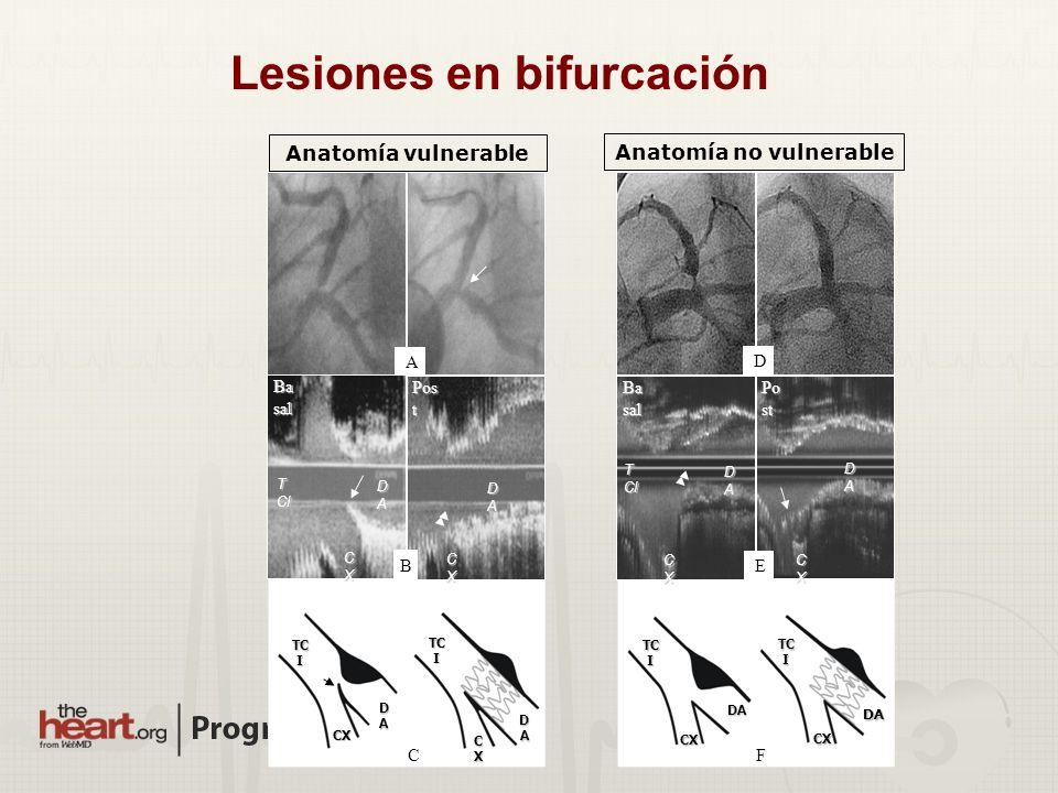 Lesiones en bifurcación Anatomía no vulnerable
