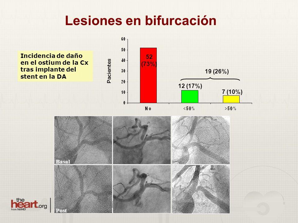 Lesiones en bifurcación