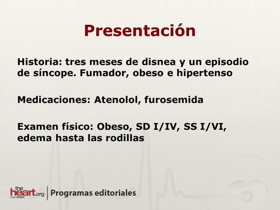 Presentación Historia: tres meses de disnea y un episodio de síncope. Fumador, obeso e hipertenso. Medicaciones: Atenolol, furosemida.