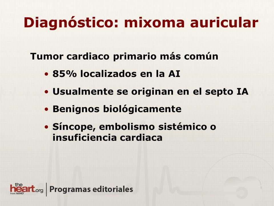 Diagnóstico: mixoma auricular