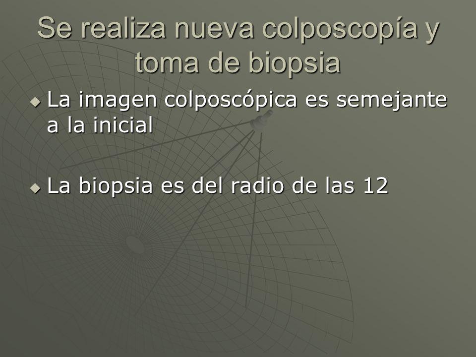 Se realiza nueva colposcopía y toma de biopsia
