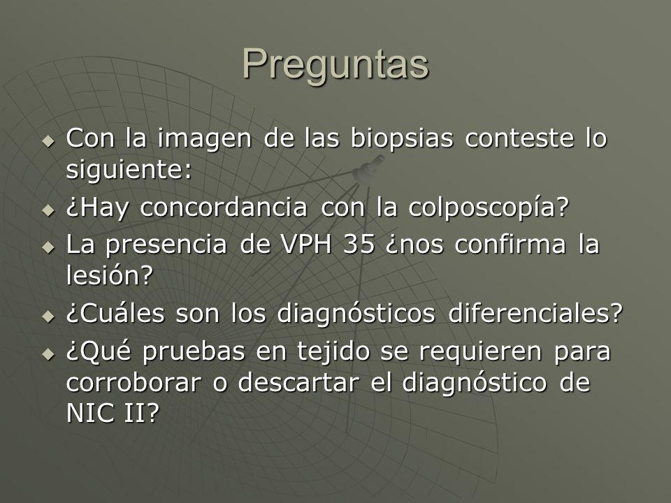 Preguntas Con la imagen de las biopsias conteste lo siguiente: