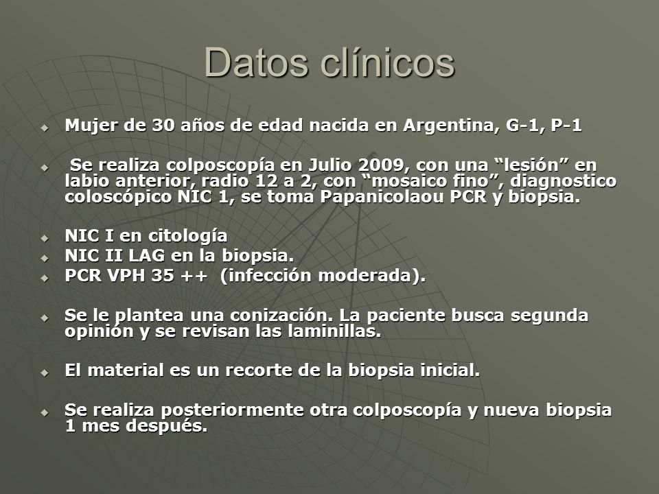 Datos clínicos Mujer de 30 años de edad nacida en Argentina, G-1, P-1