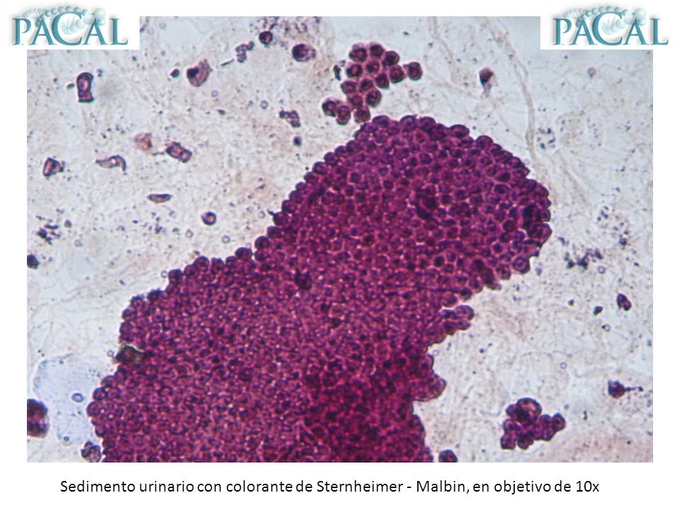 Sedimento urinario con colorante de Sternheimer - Malbin, en objetivo de 10x