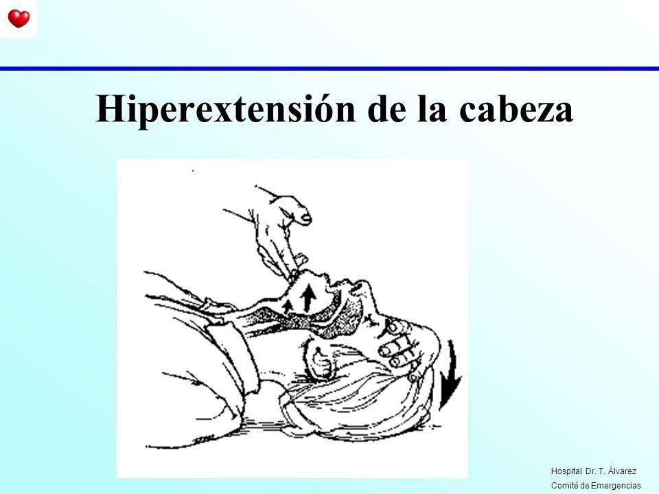 Hiperextensión de la cabeza
