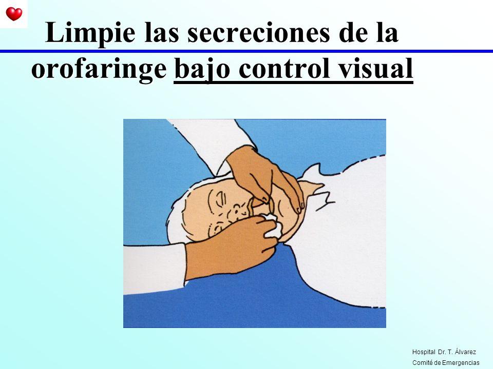 Limpie las secreciones de la orofaringe bajo control visual