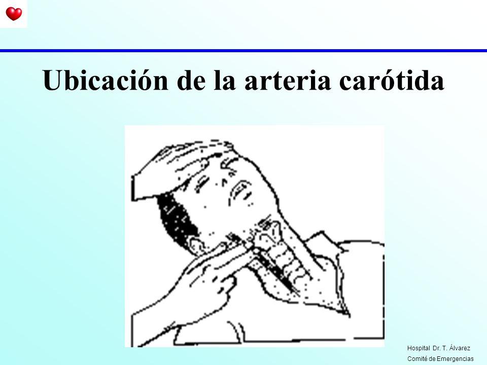 Ubicación de la arteria carótida