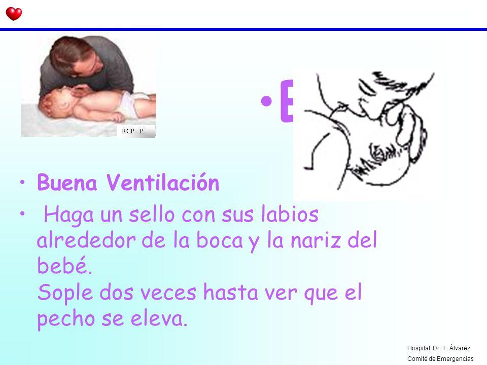 BRCP P. Buena Ventilación. Haga un sello con sus labios alrededor de la boca y la nariz del bebé. Sople dos veces hasta ver que el pecho se eleva.