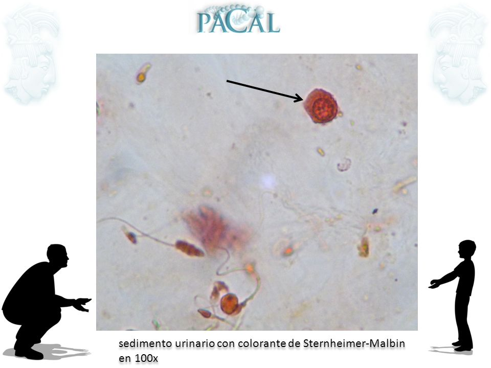 sedimento urinario con colorante de Sternheimer-Malbin