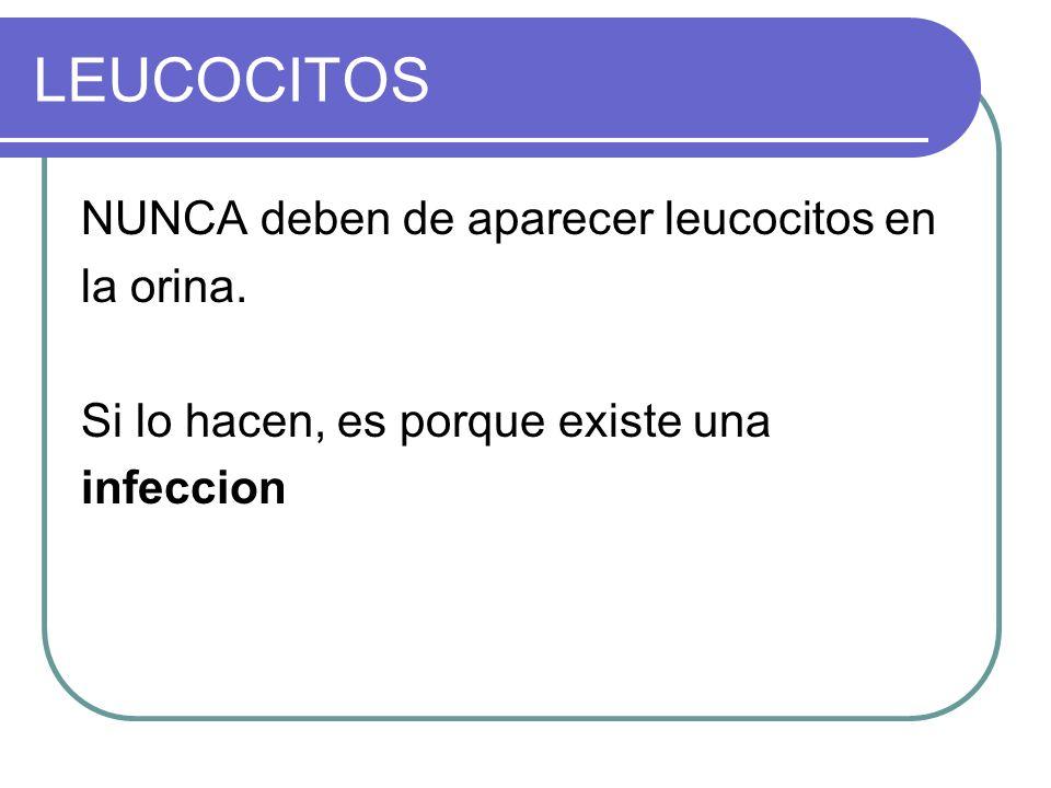 LEUCOCITOS NUNCA deben de aparecer leucocitos en la orina.