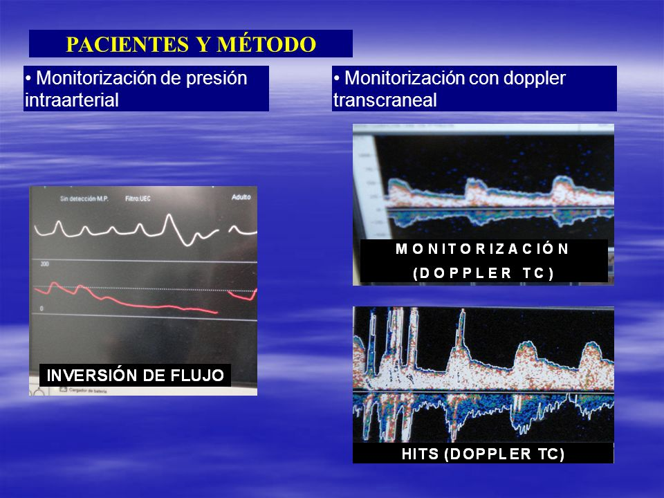 INVERSIÓN DE FLUJO MONITORIZACIÓN (DOPPLER TC) HITS (DOPPLER TC)
