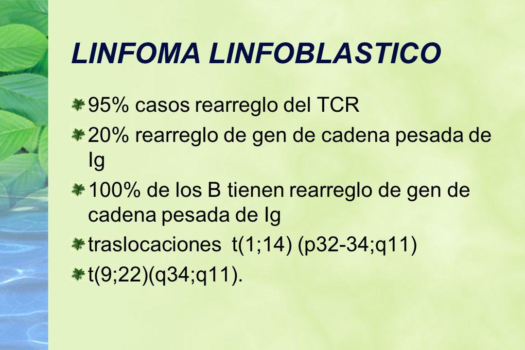 LINFOMA LINFOBLASTICO